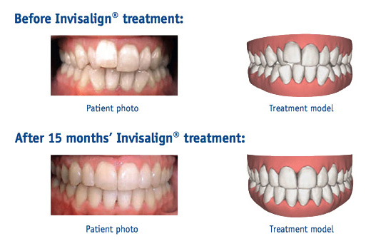 Dental Smile Gallery - Alton Dental Centre & Implant Clinic